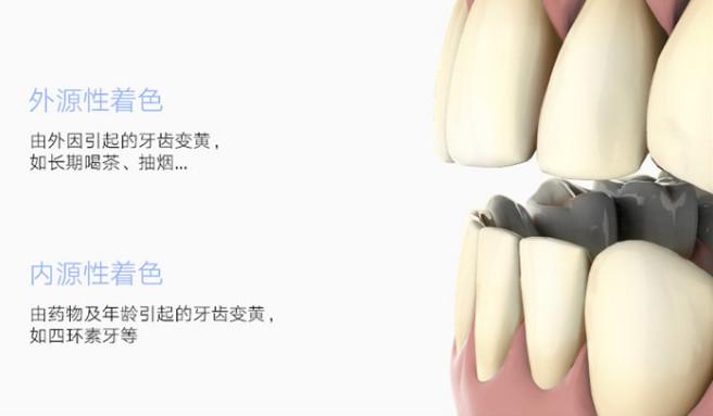 众筹也疯狂!这款冷光美牙仪,让牙齿天天都能美白SPA