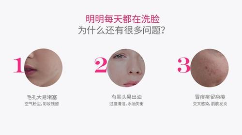 这款洗脸神器可以帮你战痘,还能给足你面子