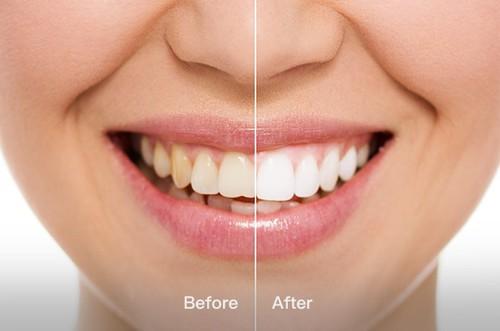 创意酷品:牙套造型的电动牙刷见过吗?10秒完成刷牙