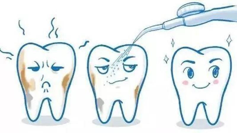 口腔清洁护理,水牙线好用吗?