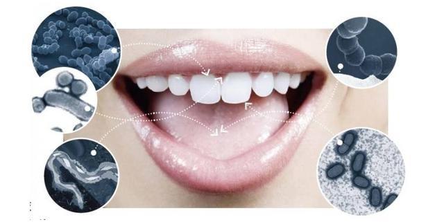 水牙线什么牌子好  让牙齿保持健康的品牌都在这