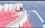 心诺冲牙器:专业医疗机构为牙齿保驾护航