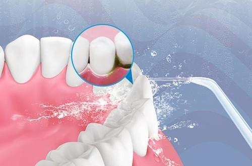 揭底口腔清洁的秘密  洁碧冲牙器与它牙医强烈推