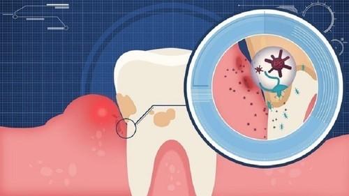 水牙线好用吗?有了它让你远离口腔疾病