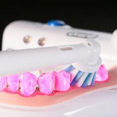 欧乐-B 7000电动牙刷体验