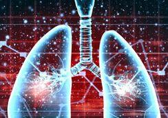 增加肺癌风险